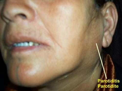 What Causes Swollen Parotid Glands Pictures to Pin on Pinterest ...